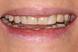 ann before Dentist Claremont Cosmetic Dentist Perth Claremont Dental