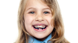 does my child need braces orthodontics Perth dentist Claremont dental