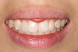 su-lin after Dentist Claremont Cosmetic Dentist Perth Claremont Dental
