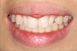 su-lin before Dentist Claremont Cosmetic Dentist Perth Claremont Dental